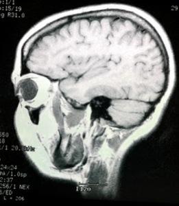 alien x-ray